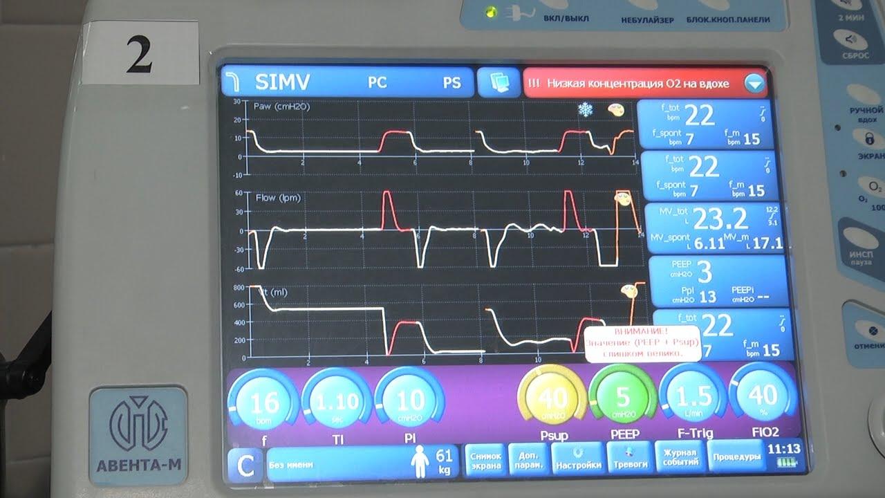 Дыхание жизни. Новое оборудование областной больницы